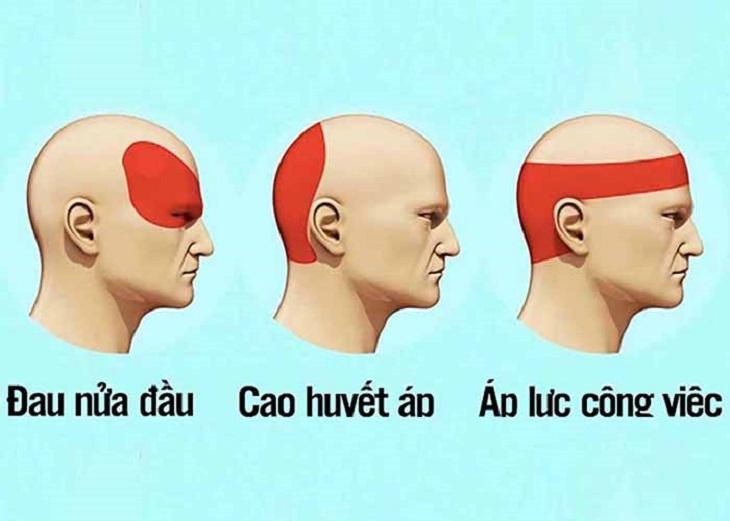 Các biểu hiện đau đầu tại các vị trí khác nhau